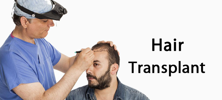 hair transplant in indore